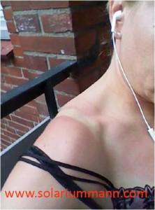 Wirkung der Sonne auf die Haut - Sonnenbrand